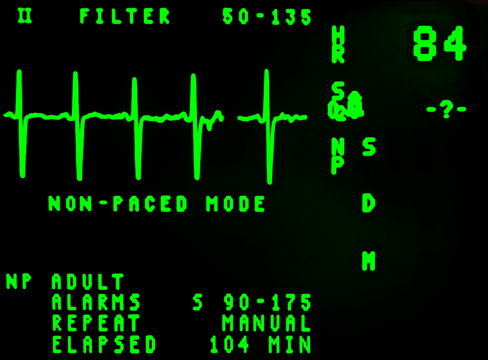 components-of-a-patient-monitoring-system-electrocardiogram-output